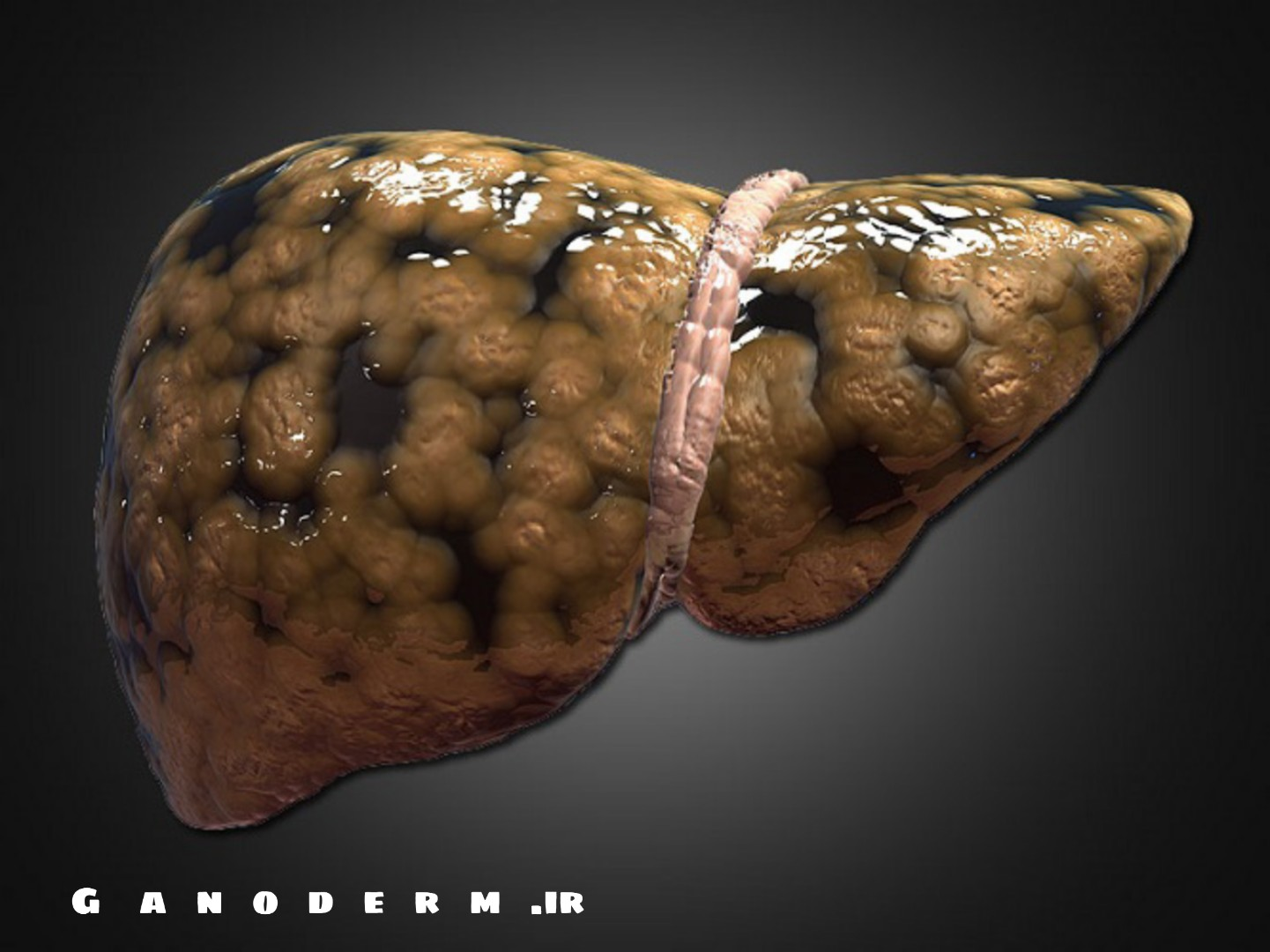 درمان کبد چرب با گانودرما