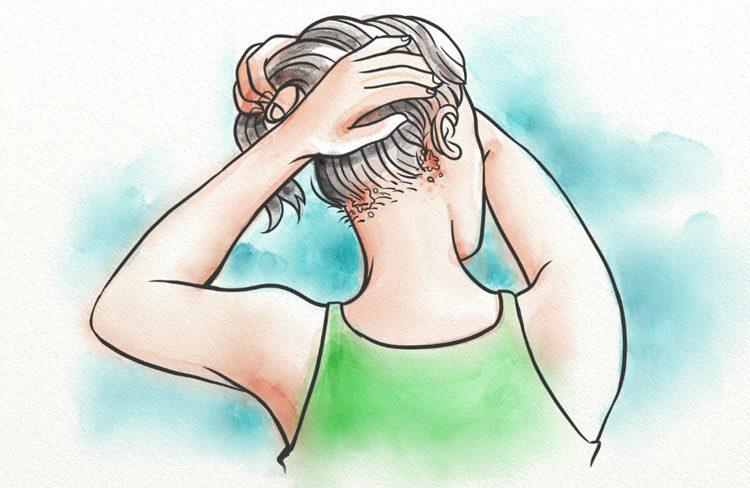 ریزش مو با عامل قارچی