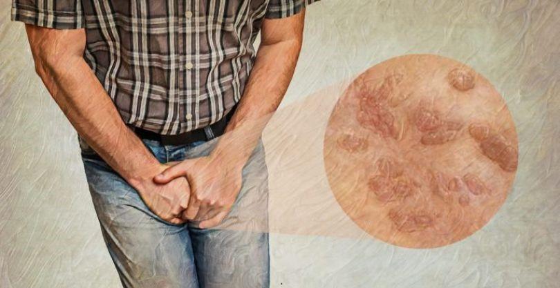 درمان زگیل تناسلی با گانودرما