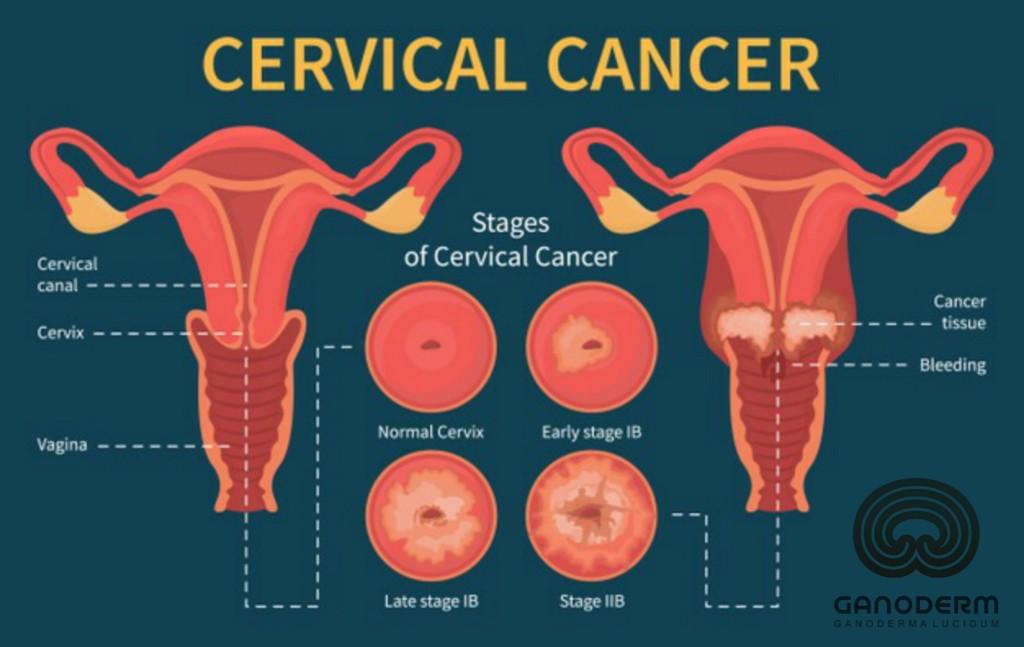 سرطان رحم و گانودرما