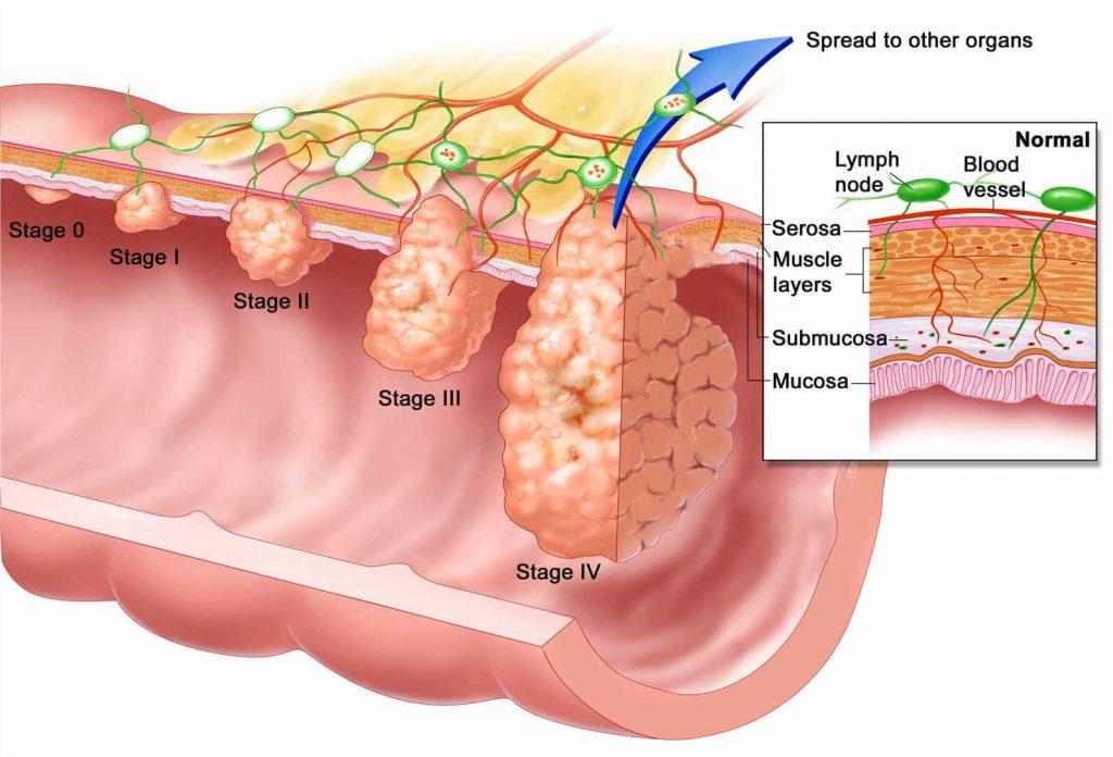 مراحل سرطان مری